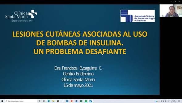 Dos interesantes presentaciones destacaron en la reunión clínica SOCHED de Junio